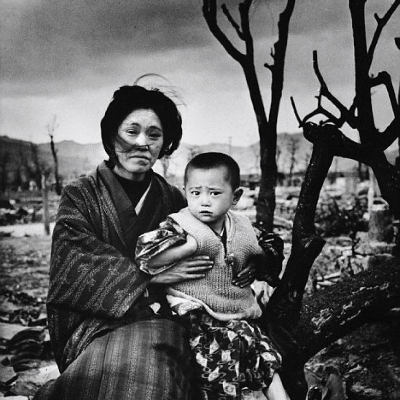 Part 2: How They Hid The Worst Horrors Of Hiroshima
