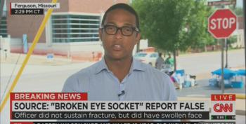 CNN Says Darren Wilson Didn't Have A Fractured Eye Socket