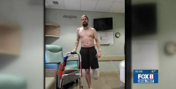 Unvaccinated Man Loses His Leg To COVID
