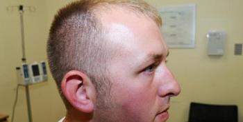 Photo Of Darren Wilson's Injuries Released