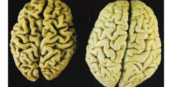 'Surprising' Immune System Link To Alzheimer's Detected