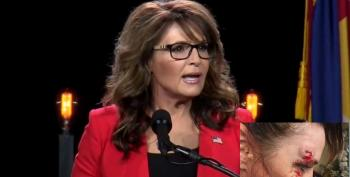 Sarah Palin Blames Bloody Head Injury On Hillary Clinton, Sort Of