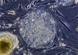 stemcell.jpg